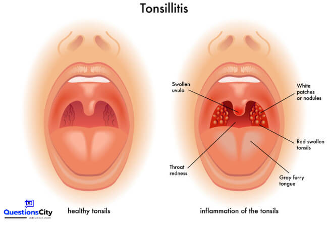 What Do Our Tonsils Do